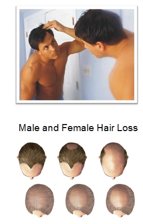 prp for hair loss Southampton Hampshire