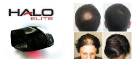 Laser Therapy for Hair Growth Southampton